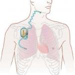 Die neue Technologie, ein Stimulator der oberen Luftwege, mit einem implantierbaren Pulsgenerator, Atmungssensor sowie einer Stimulationselektrode.