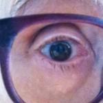 alterndes Auge