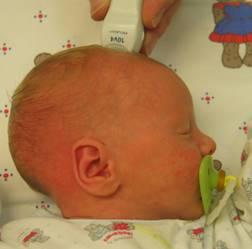 Akustisches Fenster: Um das Gehirn des Neugeborenen zu untersuchen, setzen Ärzte den Ultraschallkopf auf der großen Fontanelle des Babys auf Quelle: Prof. K.-H. Deeg, Sozialstiftung Bamberg