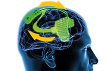Epilepsieforschung