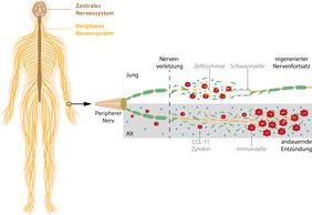 Bei der Regeneration peripherer Nerven spielt das Immunsystems eine wichtige Rolle. Im Alter ist die Immunantwort gestört und führt zu einer andauernden Entzündung, die die Regeneration stört. (Grafik: Lars Björn Riecken / FLI, Quelle: u.a. http://de.freepik.com)