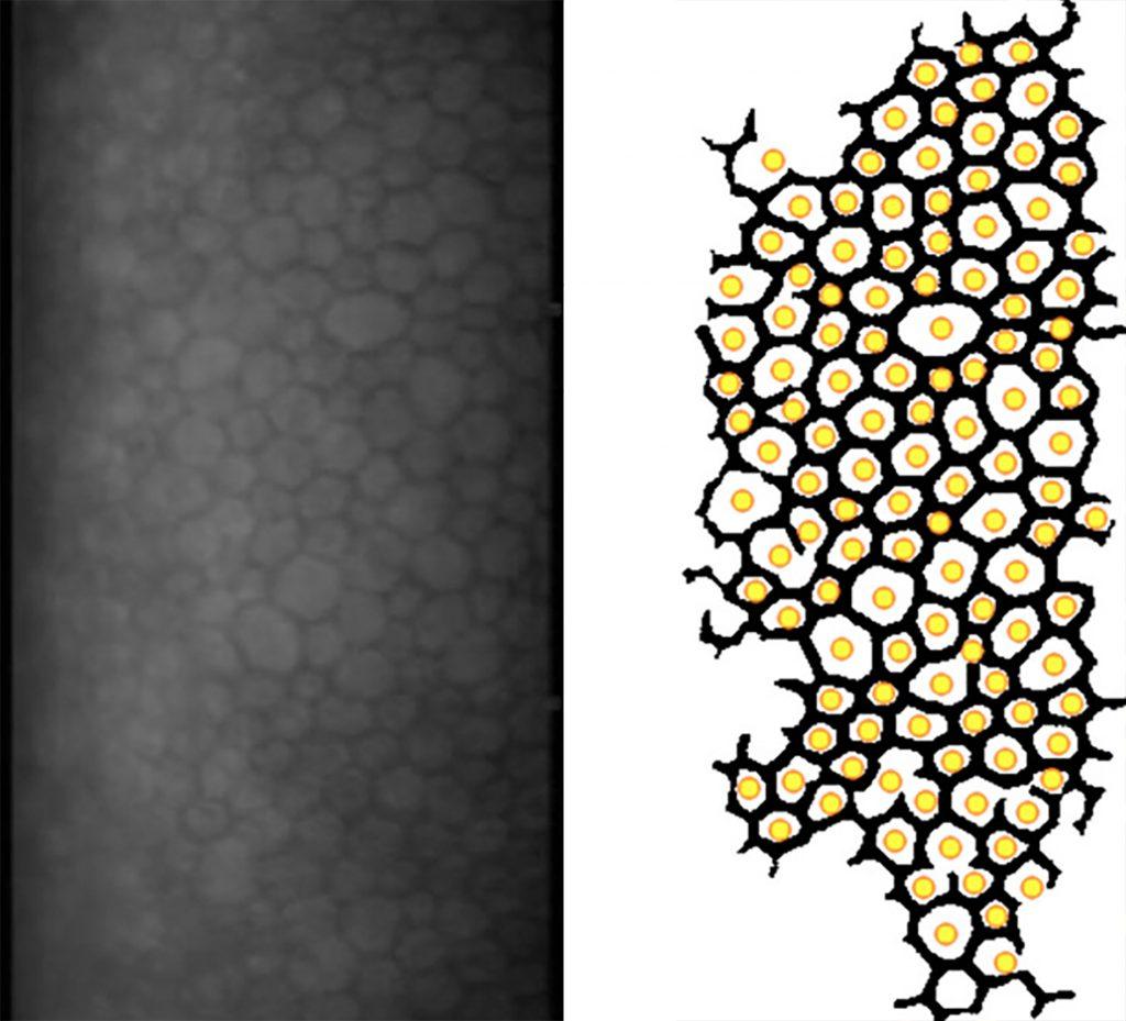 Gleich gut, aber schneller: Aus Mikroskop-Bildern unterschiedlicher Qualität mussten trainierte Augenärzte und die am Universitätsklinikum Freiburg entwickelte Software Zellen zählen. Die Software war dabei deutlich effizienter.  Bildquelle: rdcu.be/brYSJ / Universitätsklinikum Freiburg
