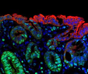 Wenn der Körper nach einer Schädigung des Darms das Notfallprogramm aktiviert, übernehmen gesunde Zellen der Darmwandoberfläche (rot) die Funktion von tiefer liegenden Stammzellen (grün). Einige Zellen leuchten deshalb zweifarbig auf. Foto: Harnack/Charité